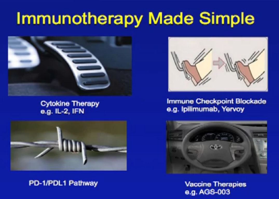 Immunotherapy For Metastatic Renal Cell Carcinoma David