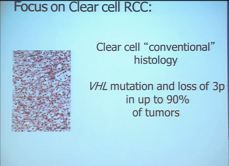 2 Focus on clear cell RCC