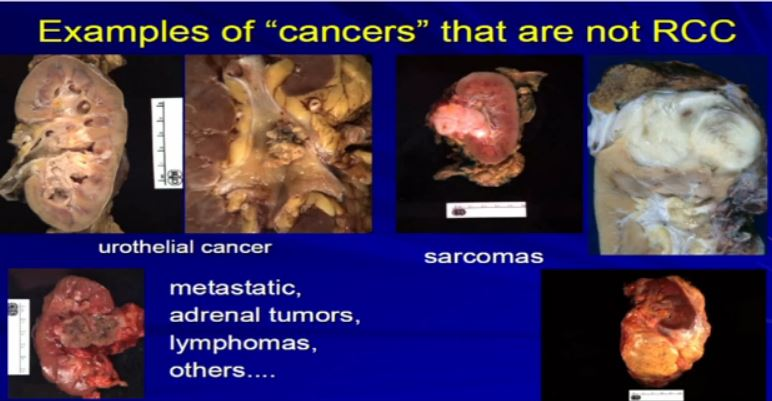 Path 6 ex of cancer not RCC