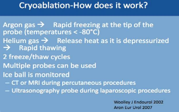 10Cryoablation How