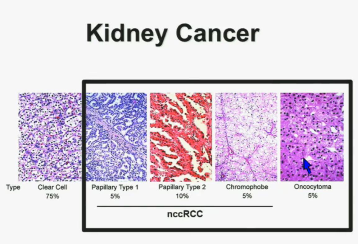 PeggyRCC com | kidney cancer education for patients by
