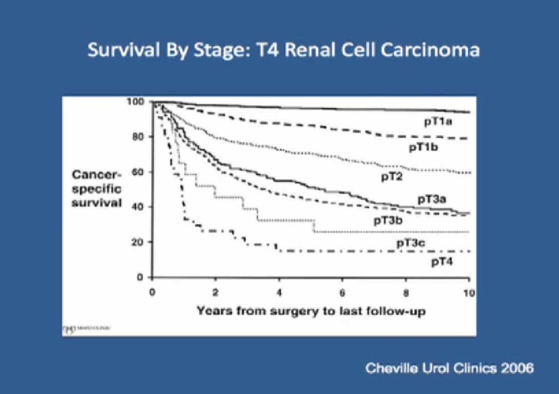 Locally Advanced Renal Cell Carcinoma Dr Chris Woods Adjacent Organ Invasion Renal Fossa Recurrencepart 4 4 Peggyrcc Com
